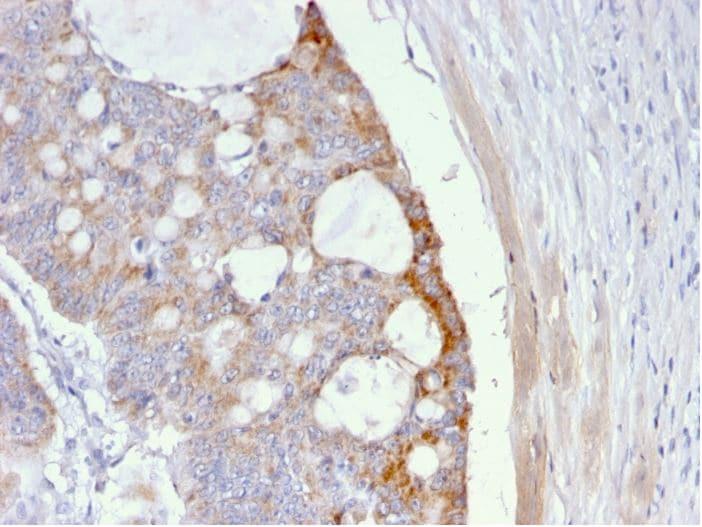 Immunohistochemistry (Formalin/PFA-fixed paraffin-embedded sections) - Anti-Thomsen-Friedenreich Antigen antibody [A63-C/A9] (ab270737)