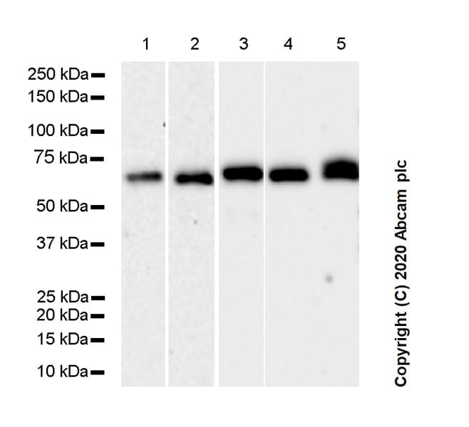 Western blot - Anti-p75 NGF Receptor antibody [NORI138B] (ab271289)