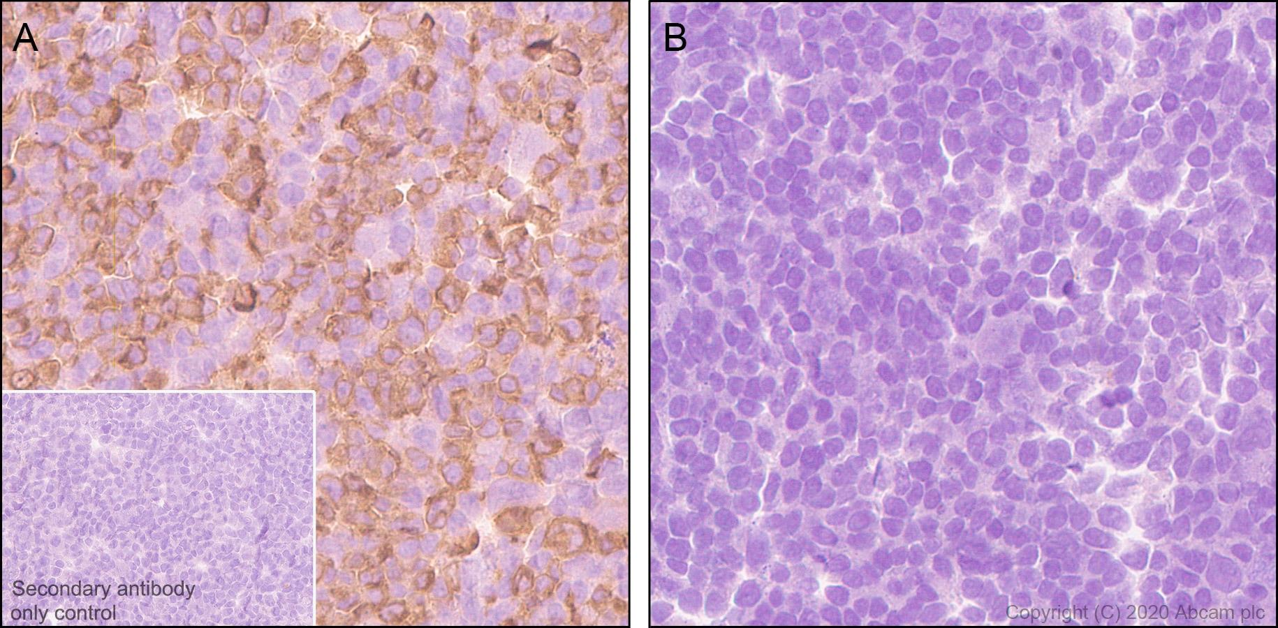 Immunohistochemistry (Formalin/PFA-fixed paraffin-embedded sections) - Anti-TVA antibody [PICA187E] (ab271292)