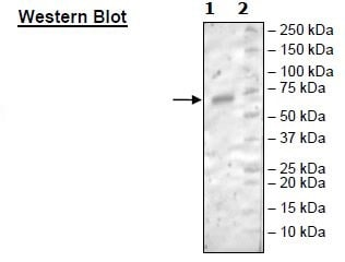 Western blot - Recombinant Mouse CD27 protein (Tagged) (ab271419)
