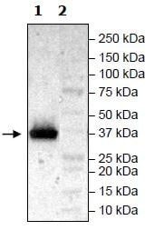 Western blot - Recombinant Human FGFR3 (mutated V443M) protein (His tag) (ab271516)