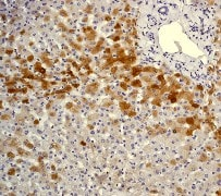 Immunohistochemistry (Formalin/PFA-fixed paraffin-embedded sections) - Anti-C Reactive Protein antibody [Y284] - BSA and Azide free (ab271830)