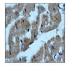 Immunohistochemistry (Formalin/PFA-fixed paraffin-embedded sections) - Anti-Integrin linked ILK antibody [EP1593Y] - BSA and Azide free (ab271842)