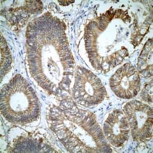 Immunohistochemistry (Formalin/PFA-fixed paraffin-embedded sections) - Anti-CD46 antibody [EPR4014] - BSA and Azide free (ab271871)