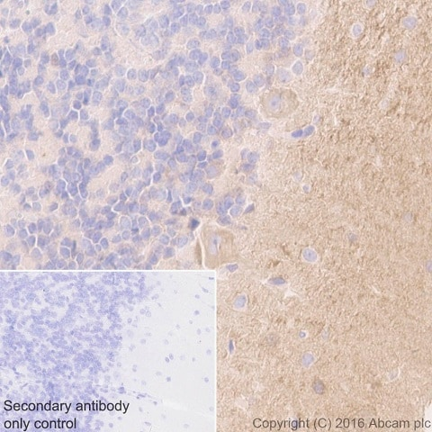 Immunohistochemistry (Formalin/PFA-fixed paraffin-embedded sections) - Anti-Tenascin C antibody [EPR4219] - BSA and Azide free (ab271877)