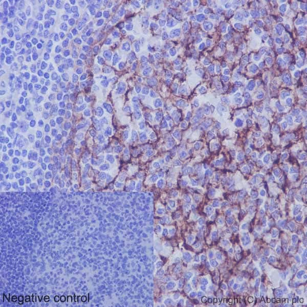 Immunohistochemistry (Formalin/PFA-fixed paraffin-embedded sections) - Anti-VCAM1 antibody [EPR5047] - BSA and Azide free (ab271899)