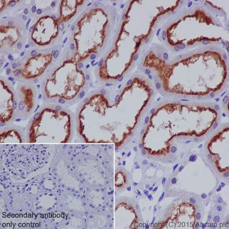 Immunohistochemistry (Formalin/PFA-fixed paraffin-embedded sections) - Anti-P Glycoprotein antibody [EPR10364] - BSA and Azide free (ab271921)