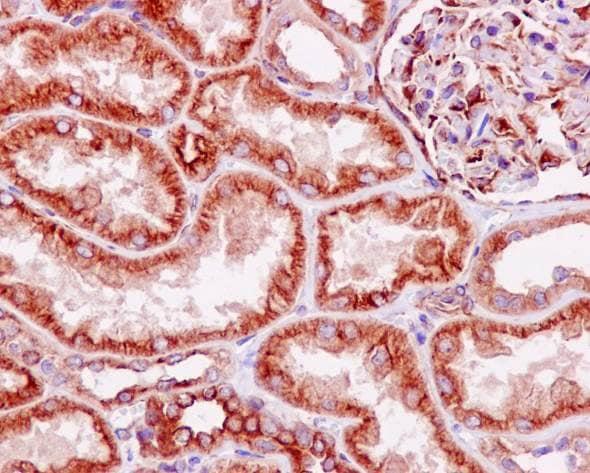 Immunohistochemistry (Formalin/PFA-fixed paraffin-embedded sections) - Anti-LOX antibody [EPR4025] - BSA and Azide free (ab271926)