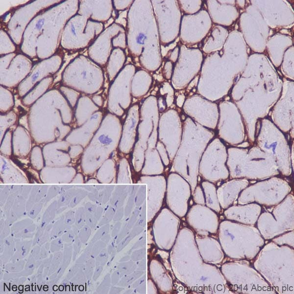Immunohistochemistry (Formalin/PFA-fixed paraffin-embedded sections) - Anti-Collagen VI antibody [EPR17072] - BSA and Azide free (ab271938)