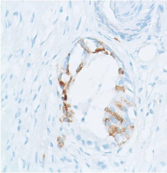 Immunohistochemistry (Formalin/PFA-fixed paraffin-embedded sections) - Anti-SPINK1/P12 antibody [SP166] - BSA and Azide free (ab271943)