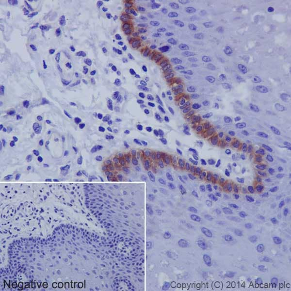 Immunohistochemistry (Formalin/PFA-fixed paraffin-embedded sections) - Anti-Collagen XVII antibody [EPR18614] - BSA and Azide free (ab271950)