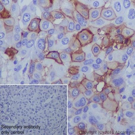 Immunohistochemistry (Formalin/PFA-fixed paraffin-embedded sections) - Anti-B7H4 antibody [EPR20236] - BSA and Azide free (ab271987)