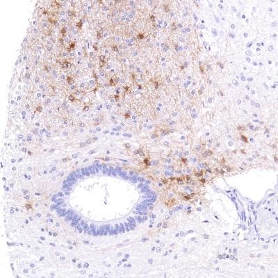 Immunohistochemistry (Formalin/PFA-fixed paraffin-embedded sections) - Anti-Alpha B Crystallin antibody [SP288] - BSA and Azide free (ab272007)