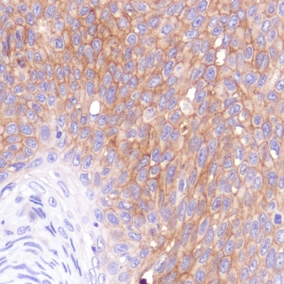 Immunohistochemistry (Formalin/PFA-fixed paraffin-embedded sections) - Anti-CD276 antibody [SP265] - BSA and Azide free (ab272011)