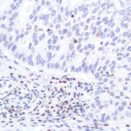 Immunohistochemistry (Formalin/PFA-fixed paraffin-embedded sections) - Anti-CD2 antibody [SP304] - BSA and Azide free (ab272017)