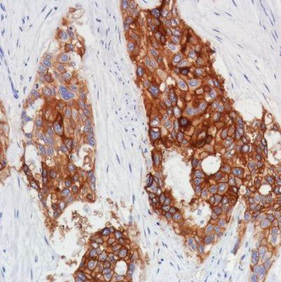 Immunohistochemistry (Formalin/PFA-fixed paraffin-embedded sections) - Anti-Thrombomodulin antibody [SP309] - BSA and Azide free (ab272018)