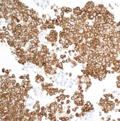 Immunohistochemistry (Formalin/PFA-fixed paraffin-embedded sections) - Anti-CD163 antibody [BLR087G] - BSA free (ab272066)