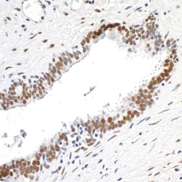Immunohistochemistry (Formalin/PFA-fixed paraffin-embedded sections) - Anti-TLS/FUS antibody [BLR023E] - BSA free (ab272077)
