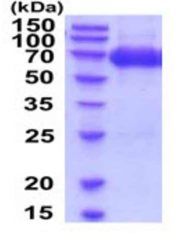 SDS-PAGE - Recombinant Mouse ICAM1 protein (ab272109)