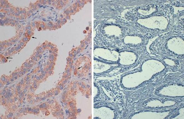 Immunohistochemistry (Formalin/PFA-fixed paraffin-embedded sections) - Biotin Anti-AKT1 (phospho S473) antibody [17F6.B11] (ab272113)