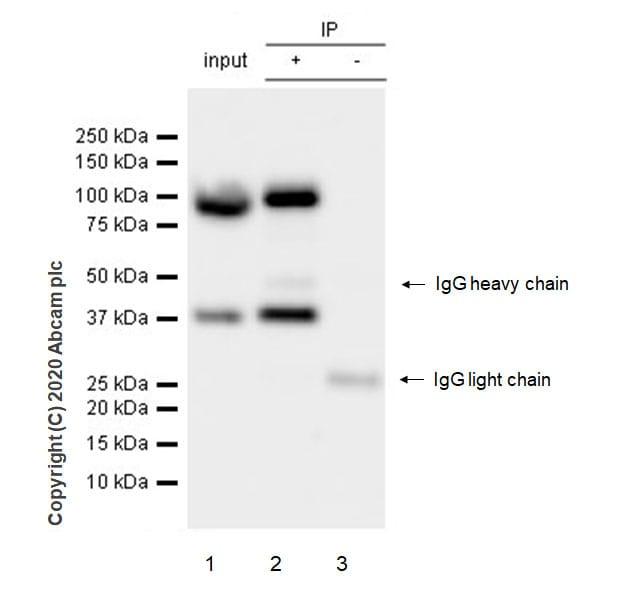 Immunoprecipitation - Anti-UBE3A antibody [EPR23077-14] (ab272168)