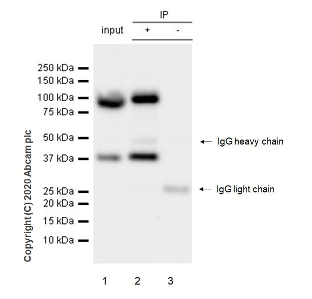 Immunoprecipitation - Anti-UBE3A antibody [EPR23077-14] - BSA and Azide free (ab272173)
