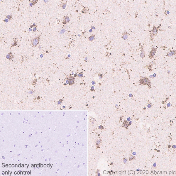 Immunohistochemistry (Formalin/PFA-fixed paraffin-embedded sections) - Anti-GALC antibody [EPR23598-126] - BSA and Azide free (ab272174)