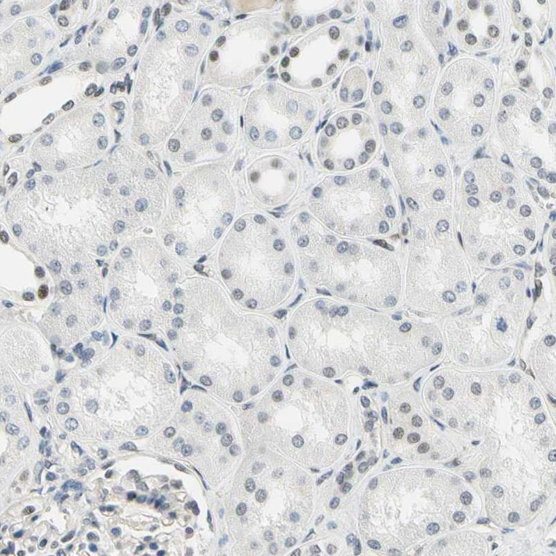 Immunohistochemistry (Formalin/PFA-fixed paraffin-embedded sections) - Anti-IMPG2 antibody (ab272558)
