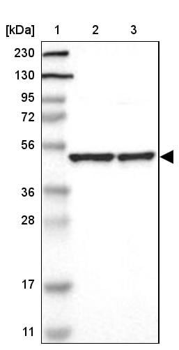 Western blot - Anti-APMAP antibody (ab272561)