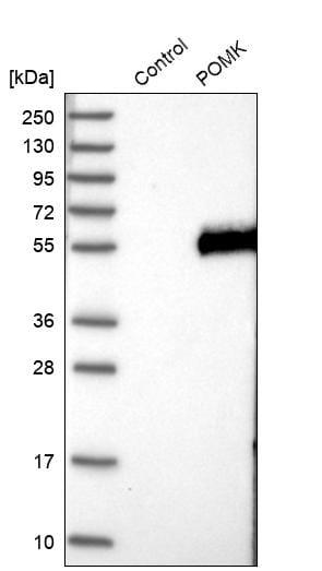 Western blot - Anti-POMK antibody (ab272564)