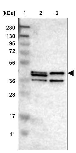 Western blot - Anti-Sphingomyelin Synthase 2 antibody (ab272570)