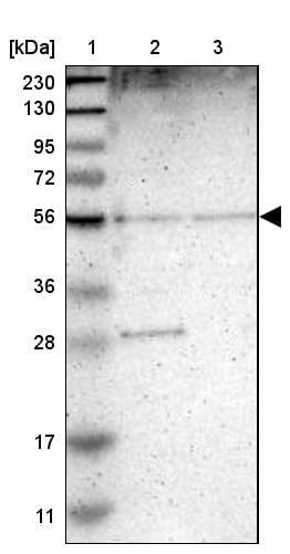 Western blot - Anti-TMEM180 antibody (ab272578)