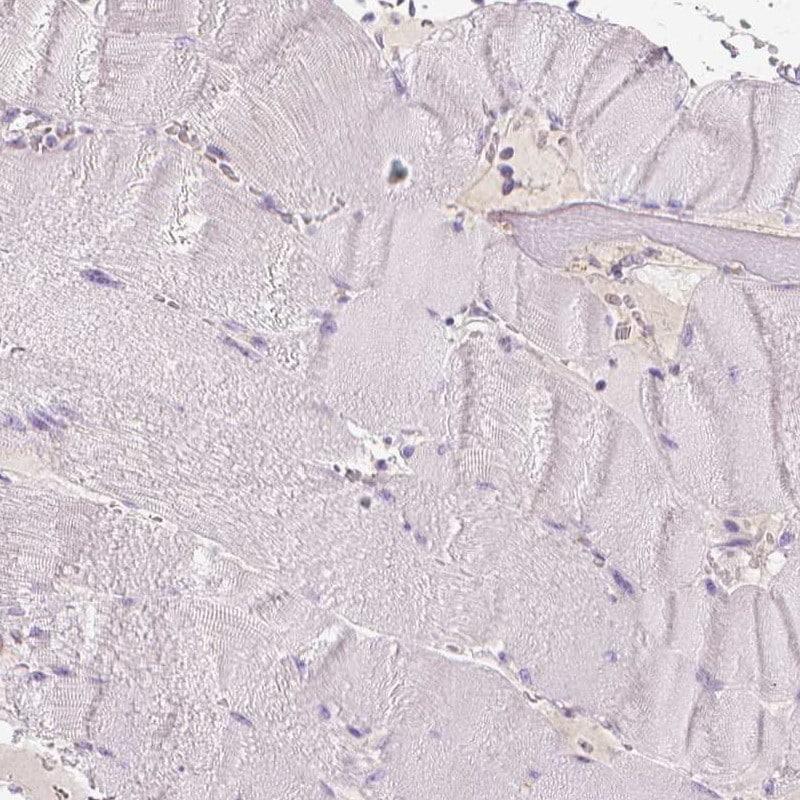 Immunohistochemistry (Formalin/PFA-fixed paraffin-embedded sections) - Anti-TRPML3 antibody (ab272579)