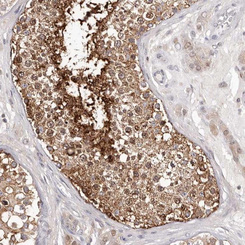 Immunohistochemistry (Formalin/PFA-fixed paraffin-embedded sections) - Anti-Glycogenin 1 antibody (ab272606)