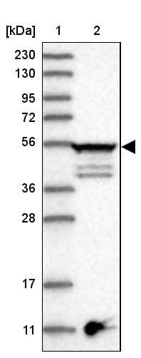 Western blot - Anti-epsilon Tubulin antibody (ab272610)