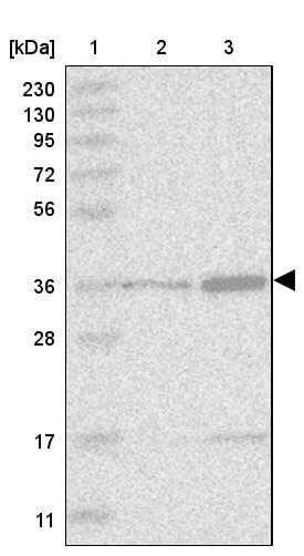 Western blot - Anti-Dnmt2 antibody (ab272620)