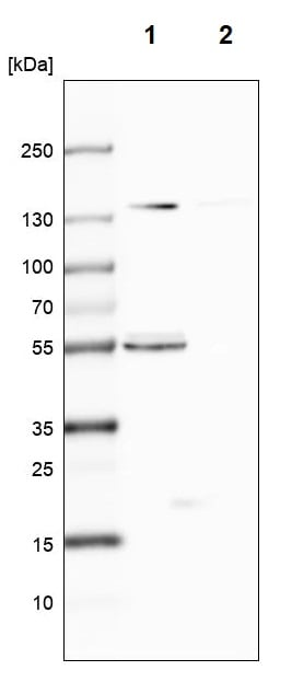 Western blot - Anti-CLPB antibody (ab272630)