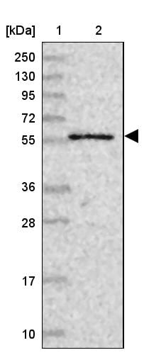 Western blot - Anti-CPSF7 antibody (ab272634)