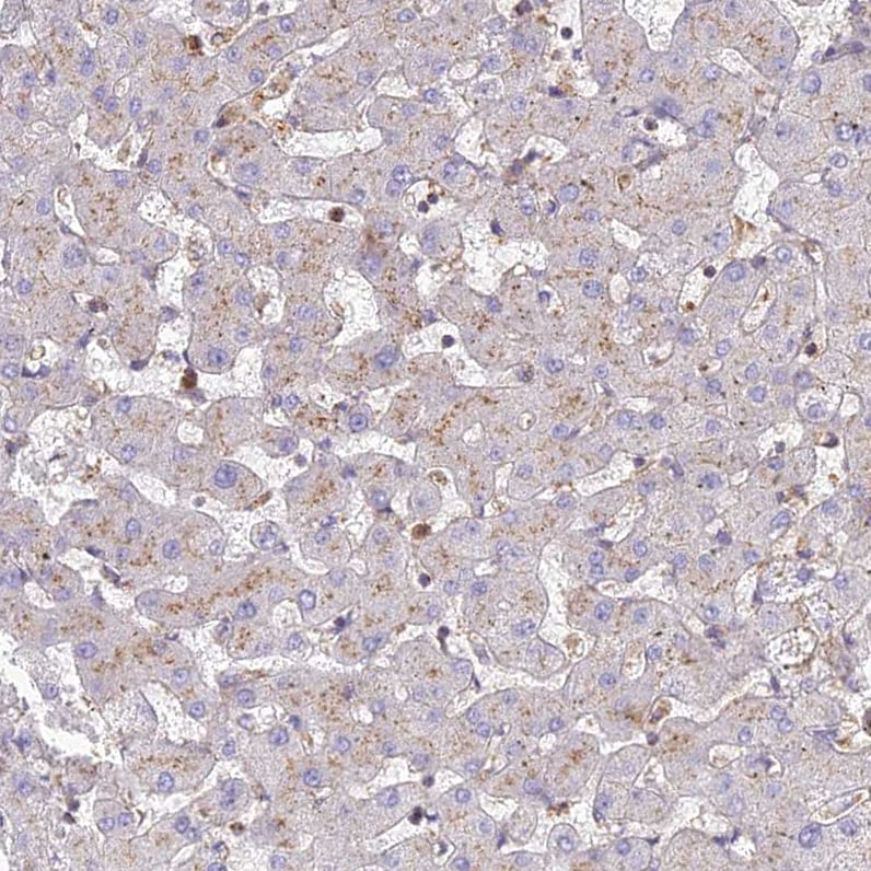 Immunohistochemistry (Formalin/PFA-fixed paraffin-embedded sections) - Anti-CHMP4B / CHMP4C antibody (ab272638)