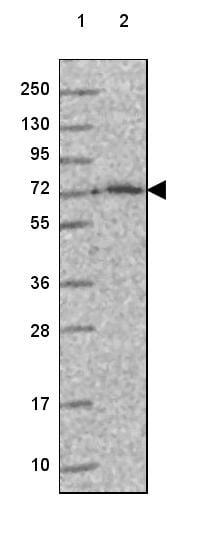 Western blot - Anti-IDUA antibody (ab272648)