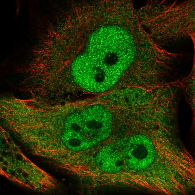 Immunocytochemistry/ Immunofluorescence - Anti-APOLD1 antibody (ab272654)
