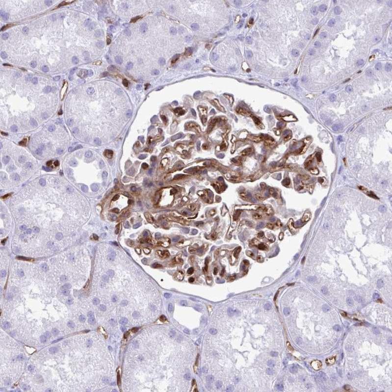 Immunohistochemistry (Formalin/PFA-fixed paraffin-embedded sections) - Anti-PINCH-2 antibody (ab272666)