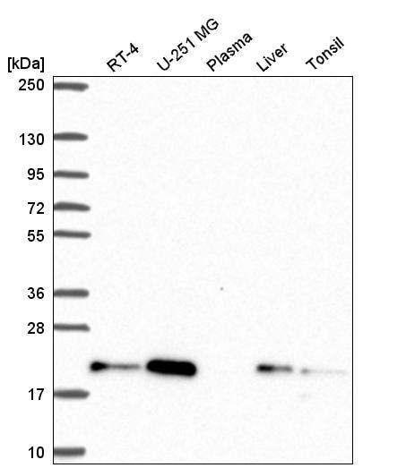 Western blot - Anti-CNBP antibody (ab272676)