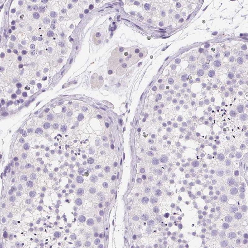 Immunohistochemistry (Formalin/PFA-fixed paraffin-embedded sections) - Anti-SSTR4 antibody (ab272677)
