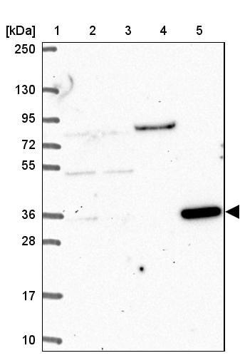Western blot - Anti-CLN6 antibody (ab272678)