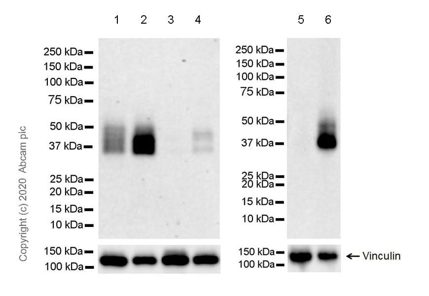 Western blot - Anti-Coxsackie Adenovirus Receptor/hCAR antibody [EPR23305-44] (ab272711)