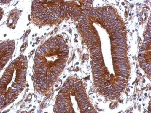 Immunohistochemistry (Formalin/PFA-fixed paraffin-embedded sections) - Anti-Vitronectin/S-Protein antibody (ab272865)