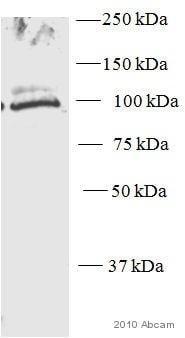 Western blot - Anti-CD31 antibody (ab28364)