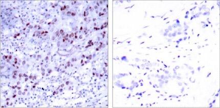 Immunohistochemistry (Formalin/PFA-fixed paraffin-embedded sections) - Anti-GATA1 antibody (ab28839)