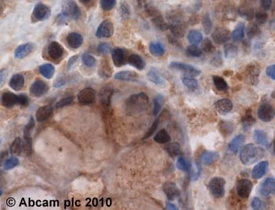 Immunohistochemistry (Formalin/PFA-fixed paraffin-embedded sections) - Anti-PSMB5/MB1 antibody (ab3330)
